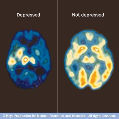 my00238_im00356_c7_pet_depressionthu_jpg